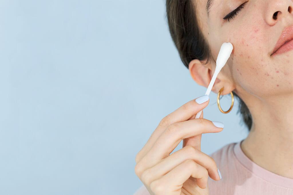 6 mitos sobre el acné